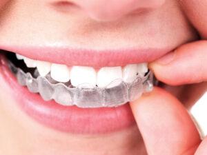 apparecchio trasparente, costo apparecchio trasparente, invisalign, allineamento denti
