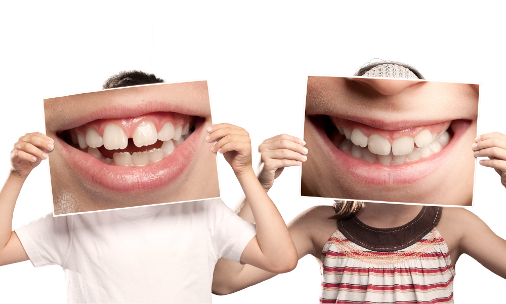 La dentizione e la permuta dentale